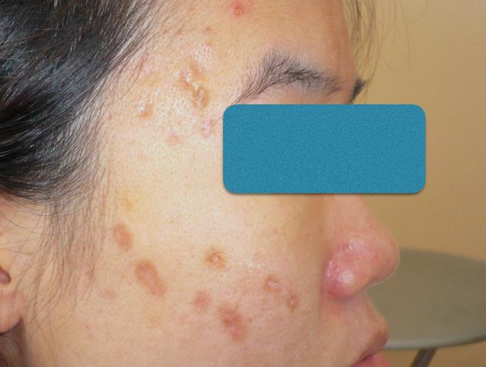 CO2 acne DrKamthon crop.png